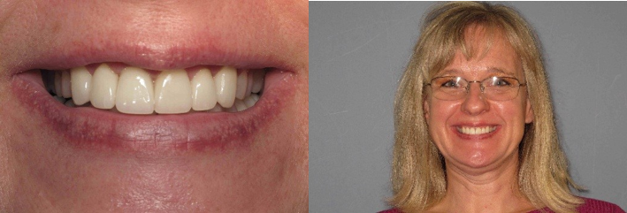 Ruth after occlusal therapy at Eggert Family Dentistry