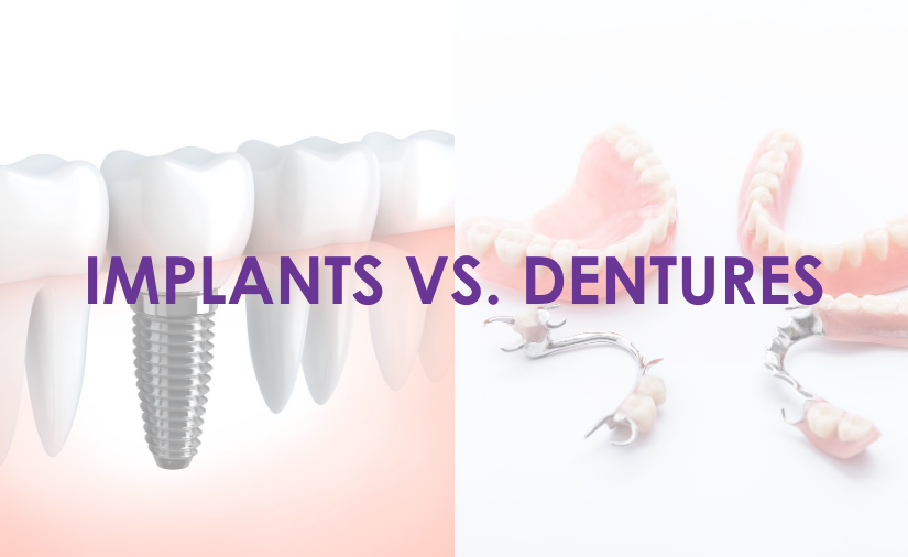 Implants Versus Dentures