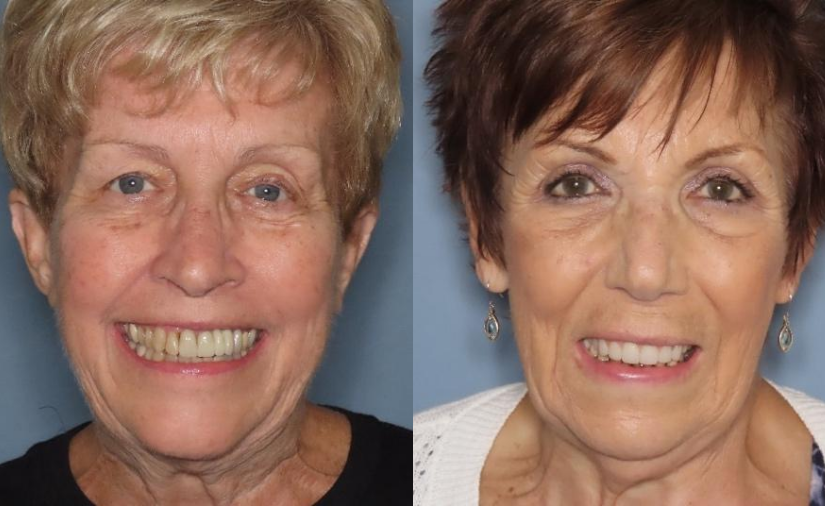 Two Amazing Implant Stories! Candy and Joan's Stories