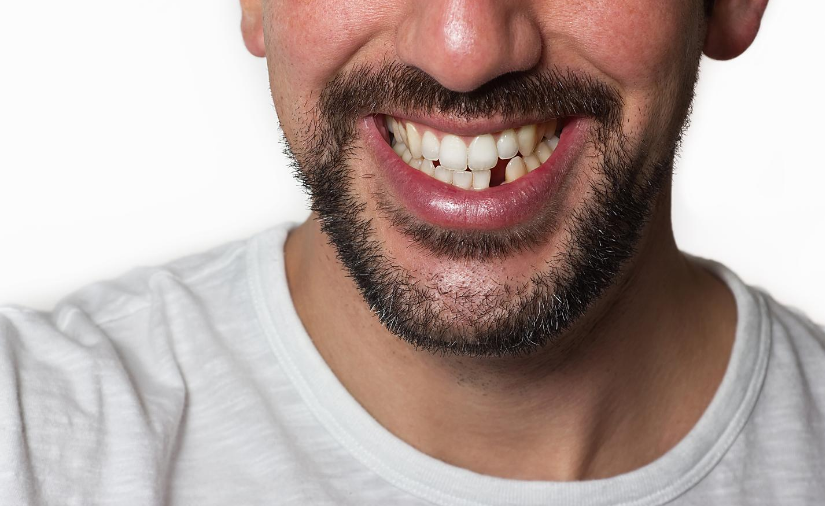 Why It's Important to Replace Missing Teeth