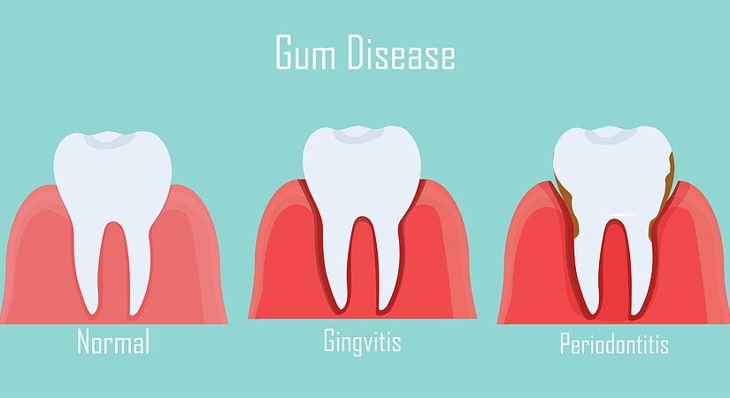 Gingivitis and Periodontitis: What's the Difference?