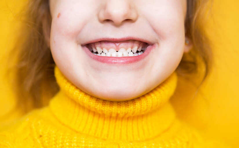 I Have an Underbite. Why Should I Treat It and What Are Common Treatment Options?