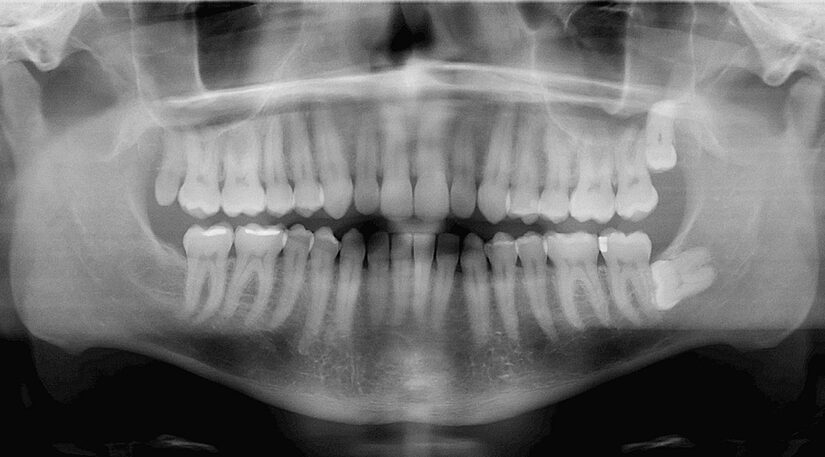 Do You Think Your Wisdom Teeth Should Be Removed? Watch for These Common Signs